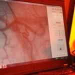 085 C2 Microcirculation - Kunstwerk